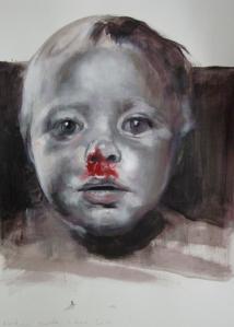 Bloedneus - 01 december 2011